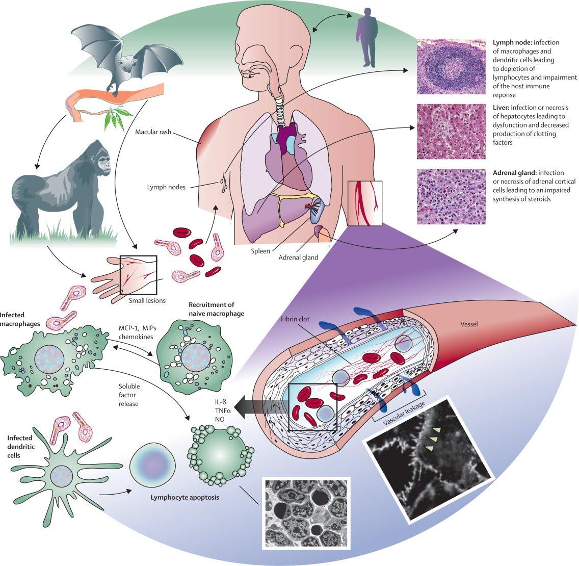 transmission-du-virus-ebola